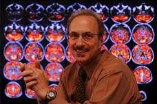 29 scientistsdi Scientists discover new Alzheimers gene